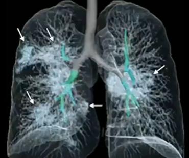 新型コロナウイルス(武漢肺炎/COVID-19)と中国社会(2/13まとめ) 特徴、感染者数、診断と治療、予防法、発生源…