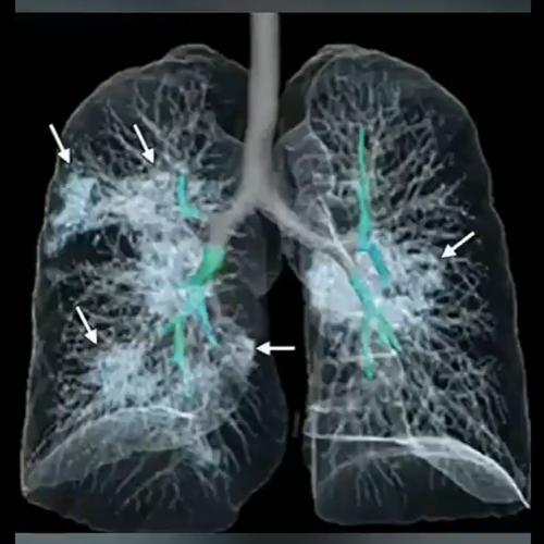 肺のCT画像のコピー