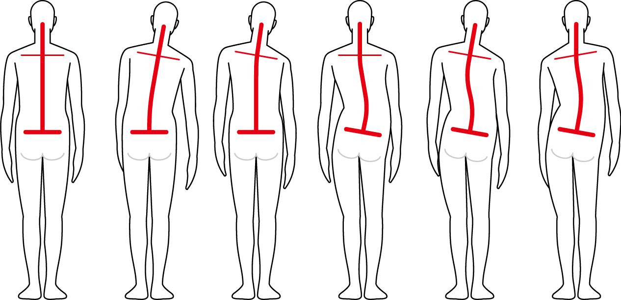 肩と骨盤のバランス-iStock-877244390 (1) [更新済み]